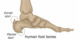 Heel Spurs - The Foot Care Group